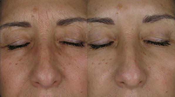 Lipomodelage LGP Visage : Avant & Après